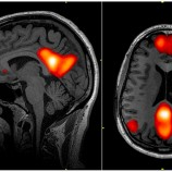 Neuroscienze, circuito di default e Sturmtruppen